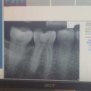 my broken tooth